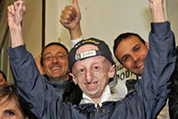 Operato al cuore paziente con progeria