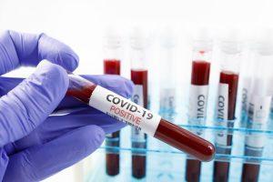 Coronavirus, due casi a Tarquinia e uno a Montalto