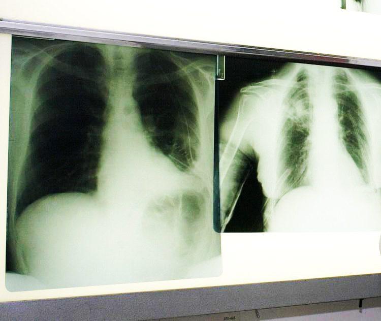 Cancro al polmone, arriva la nuova terapia